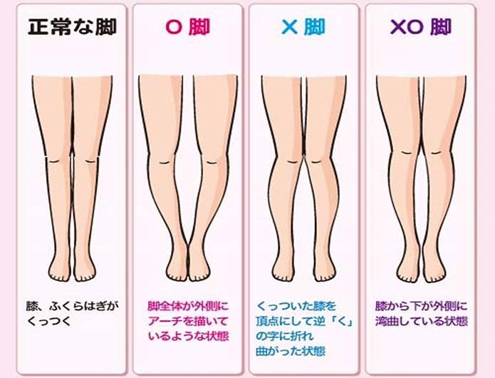 膝の痛み 原因4変形