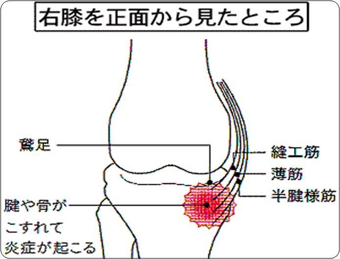 膝の痛み鵞足炎