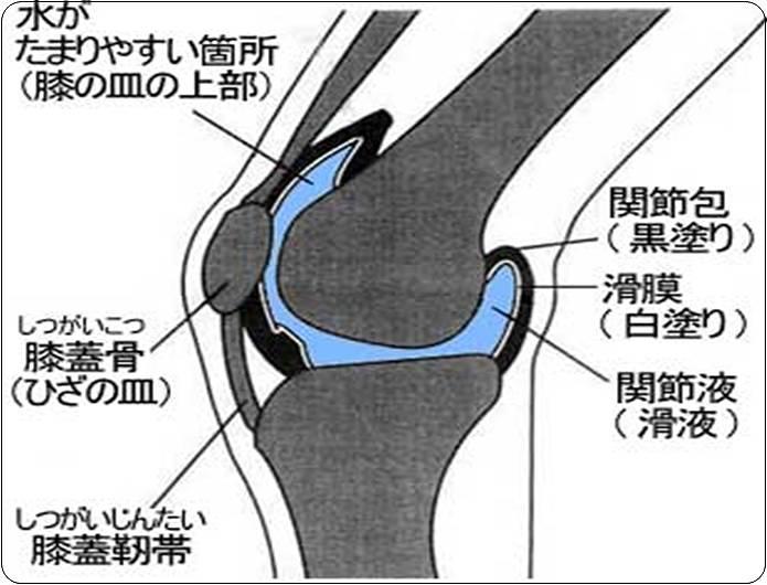 膝の痛み水がたまる