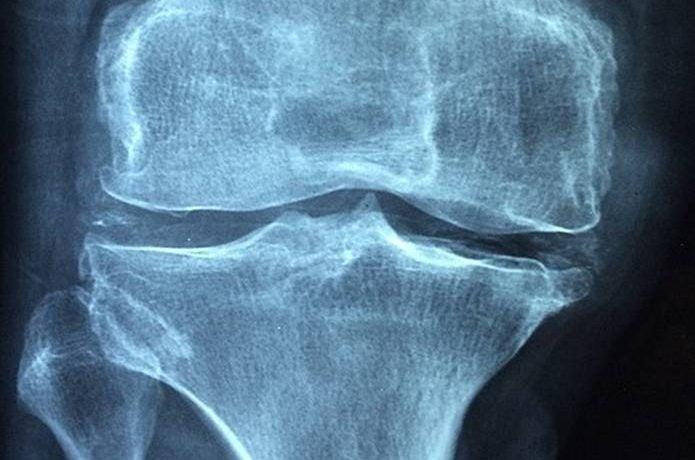 膝の痛み 原因3病気