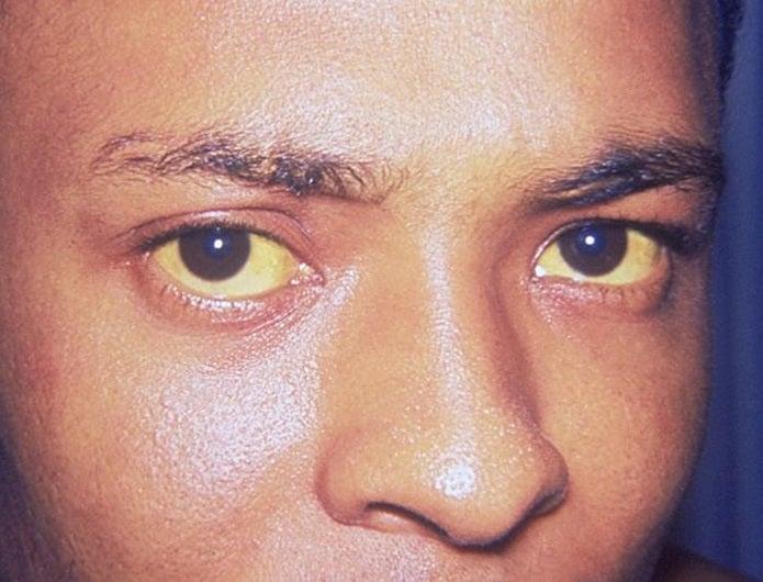 ドクツルタケで目が黄色くなる男性