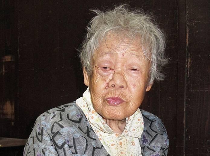 クマ:多賀・被害1年重傷負った田中さん