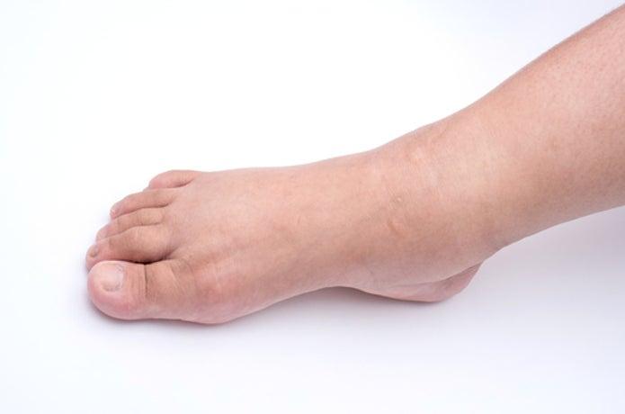少しむくみのある足
