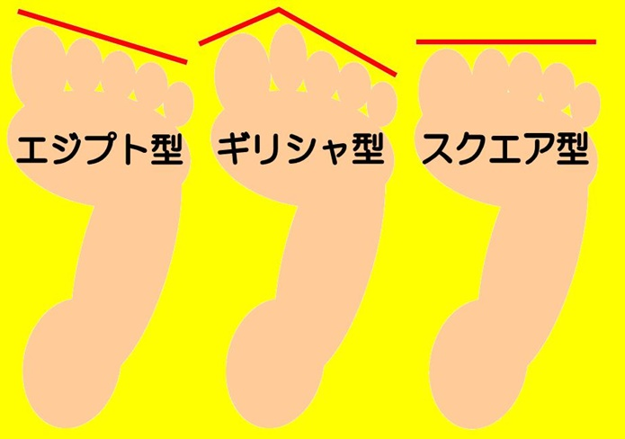 3種類の足の形の図