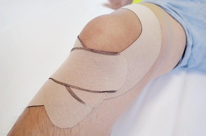 膝 曲げる と 痛い 突然
